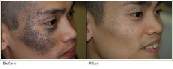 birthmark-brown5