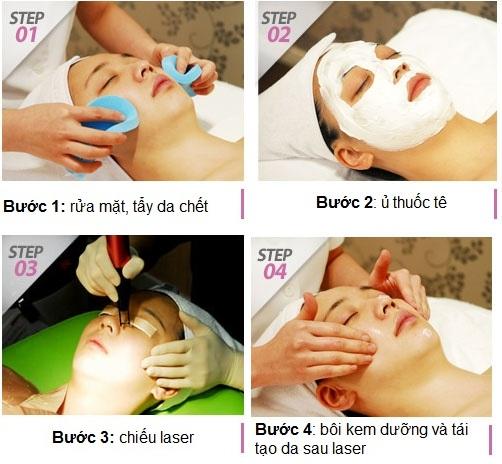 quy trình laser acne