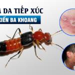 Viêm da da tiếp xúc do kiến khoang