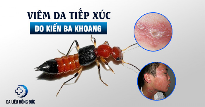 kien_ba_khoang